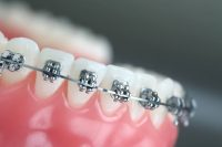 مطلوب لمجمع طبي اسنان #السعوديه #القصيم #خميس_مشيط